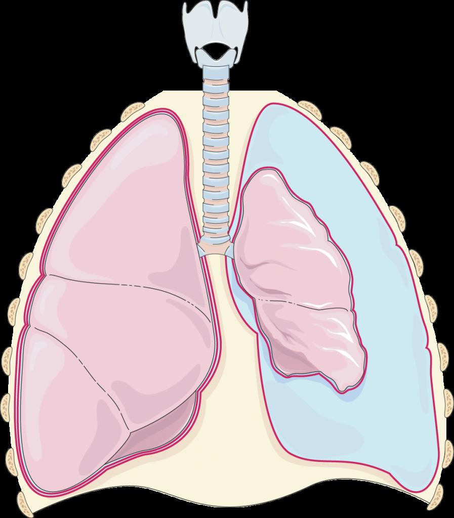 Pneumothorax (Kapitel Grundlagen)